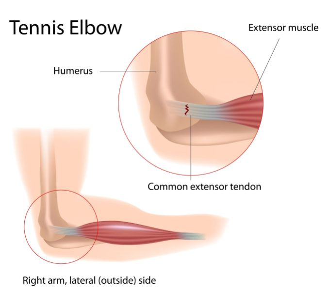 Tendon Tennis Elbow Sakit Siku Badminton